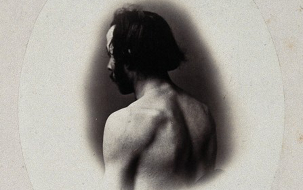 V0029478 A man's head and left shoulder, unclothed and viewed from be Credit: Wellcome Library, London. Wellcome Images images@wellcome.ac.uk http://wellcomeimages.org A man's head and left shoulder, unclothed and viewed from behind. Photograph by L. Haase after H.W. Berend, 1865. 1856 By: Heimann Wolff Berend and L. Haase & Co Kˆnigl Hofphotographen (Berlin).Published: - Copyrighted work available under Creative Commons Attribution only licence CC BY 2.0 http://creativecommons.org/licenses/by/2.0/