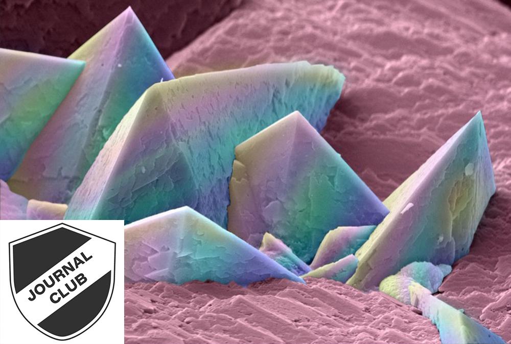 Kidney stone crystals