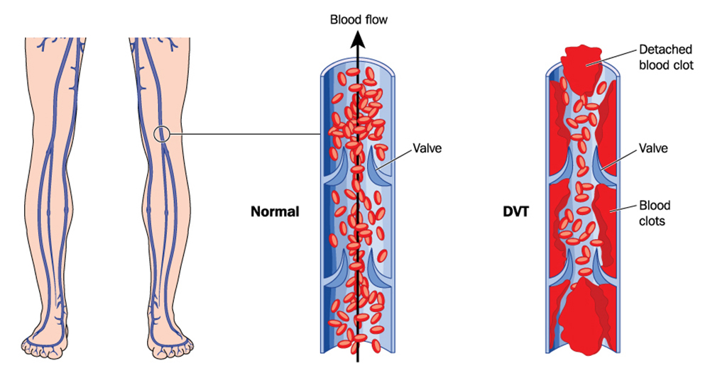 pico and dvt Dvt, vitals, borg, 6mw, spo2, pft, etc cognition   dvt - deep vein  thrombosis fall screening tool: steadi  by request: tables of evidence (pico .