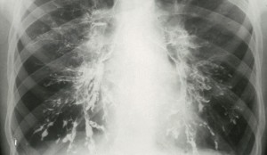 N0007463 Bronchiectasis Credit: Wellcome Photo Library. Wellcome Images images@wellcome.ac.uk http://wellcomeimages.org Bronchiectasis  Xray, chest, pa X-ray 1970s to 1986 Published:  -   Copyrighted work available under Creative Commons by-nc-nd 4.0, see http://wellcomeimages.org/indexplus/page/Prices.html