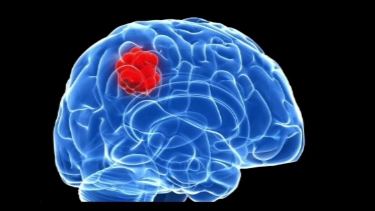 picture of a brain with tumours