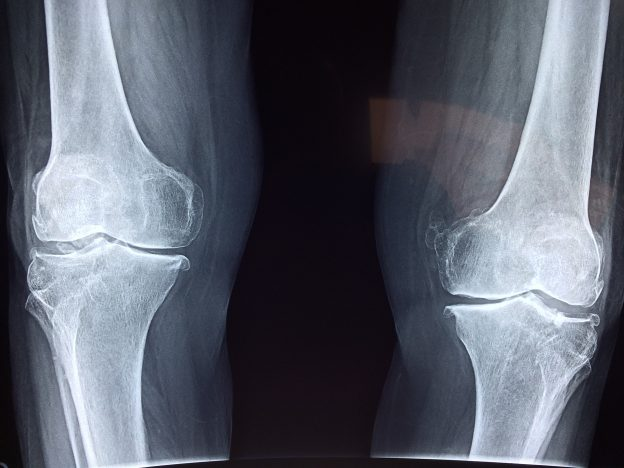 Xray of knees with osteoarthritis